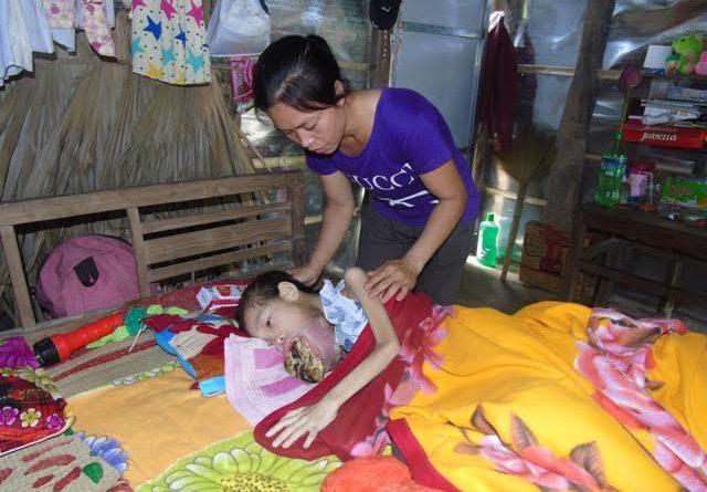Xót xa bé gái có khối u tràn ra cả miệng, mẹ đớn đau trong bất lực vì không lo được cho con