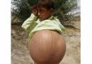 Đau đớn lòng trước gia cảnh của cậu bé 9 tuổi có cái bụng to nhất thế giới vì… BỆNH LẠ