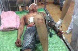 Nạn nhân Bùi Ngọc Anh và Nguyễn Đức Toàn bị thương nặng nhất