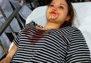 Do từ chối tình cảm nên cô gái bị công an nhân dân đánh bầm dập